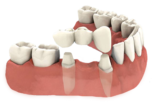 Dentist for a Porcelain Dental Bridge