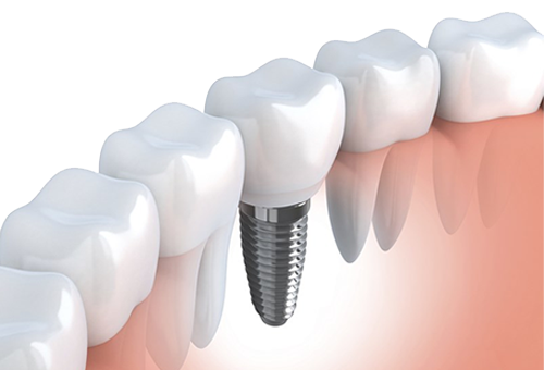 Dentist for titanium dental implant in Vista CA