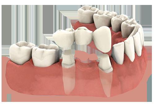 Dentist for a Porcelain Dental Bridge