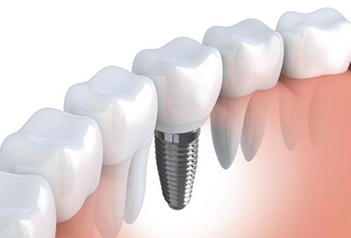 Dentist for titanium dental implant in Vista CA